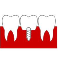 Имплантация зубная